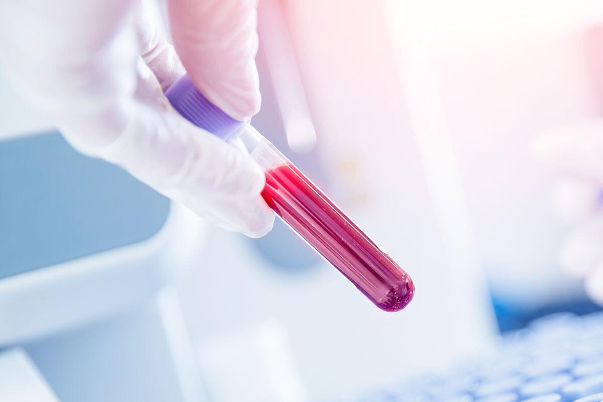 Alzheimer im Blut erkennen?, © Parilov/Shutterstock.com