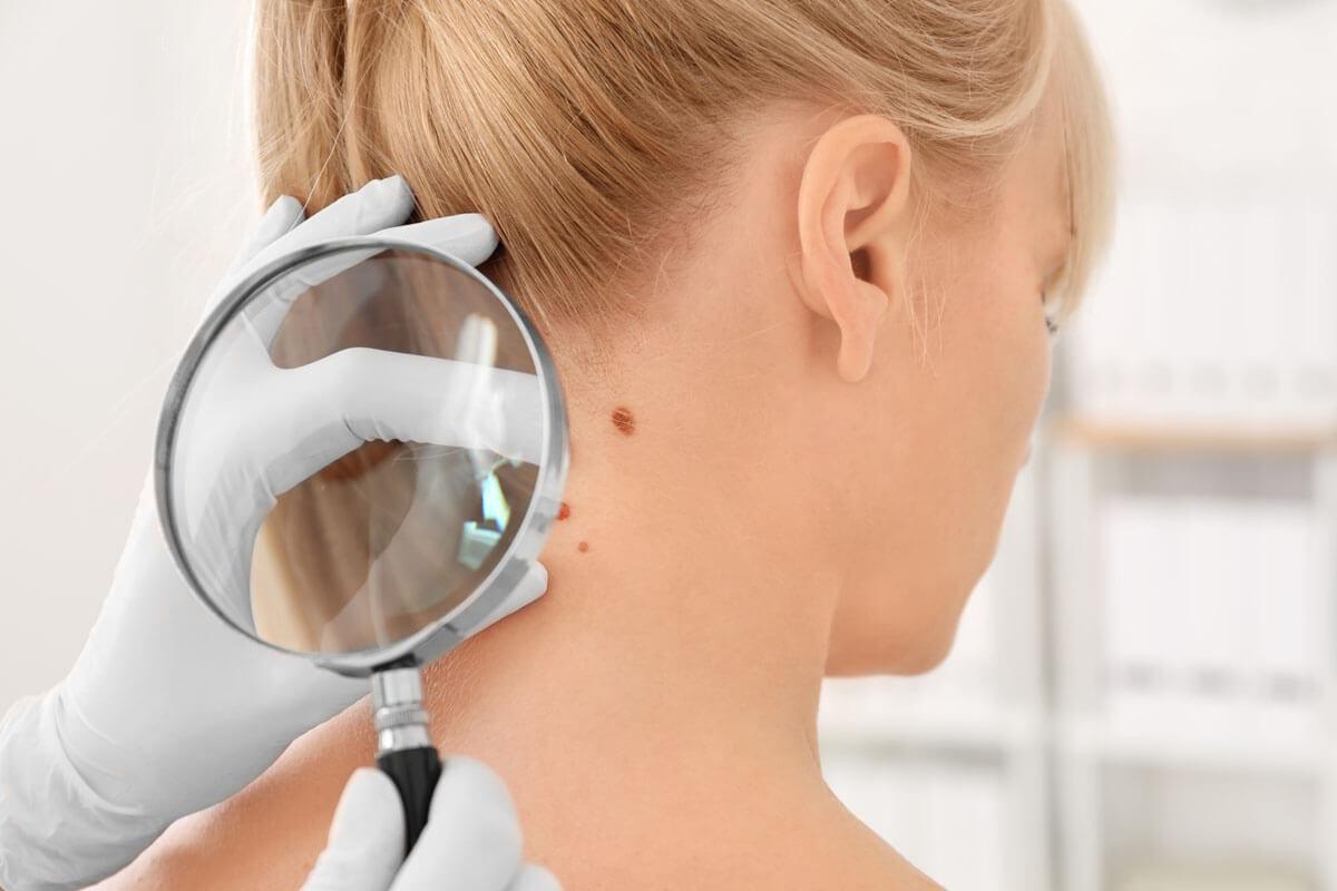 Hautkrebs-Zahlen steigen deutlich, © Africa Studio/Shutterstock.com