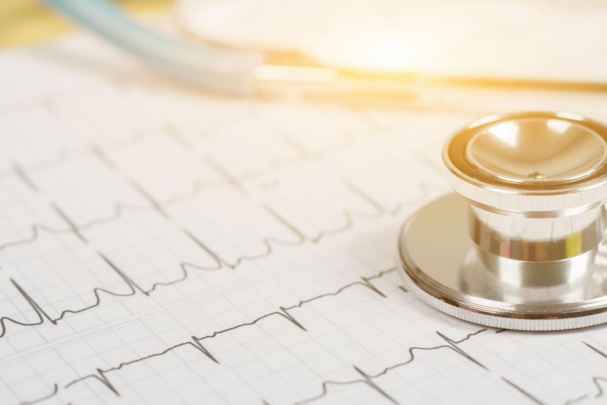 Im EKG lassen sich Unregelmäßigkeiten des Herzschlags gut nachvollziehen.