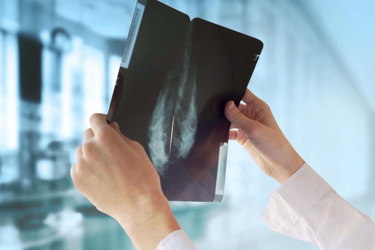 Kein Brustkrebs-Screening auslassen!, © Guschenkova/Shutterstock.com