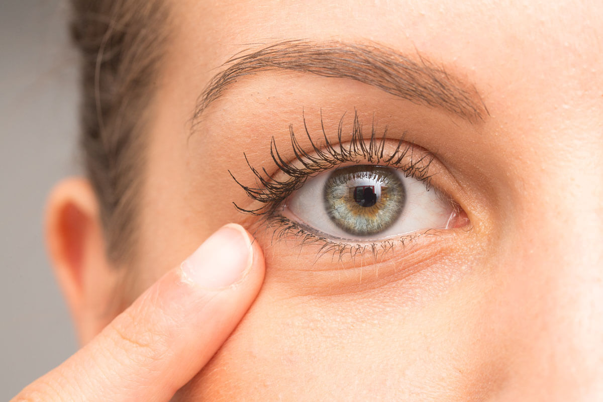 Augenringe und ihre Behandlung, © sruilk/Shutterstock.com
