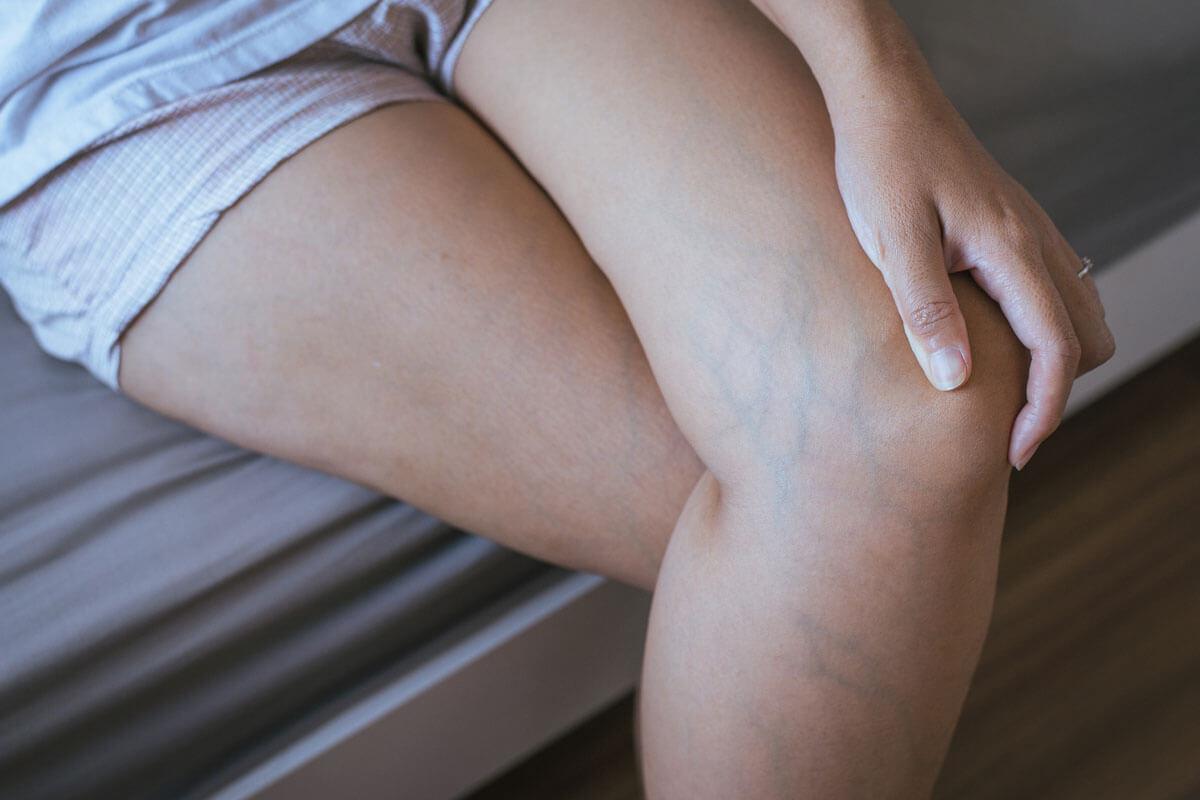 Krampfadern gekonnt behandeln, © GBALLGIGGSPHOTO/Shutterstock.com