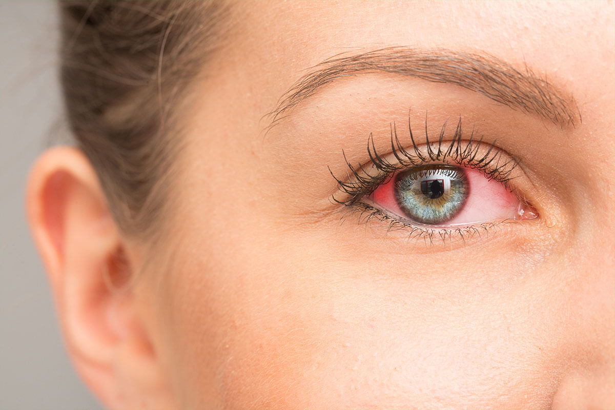 Rotes Auge, © sruilk/shutterstock.com