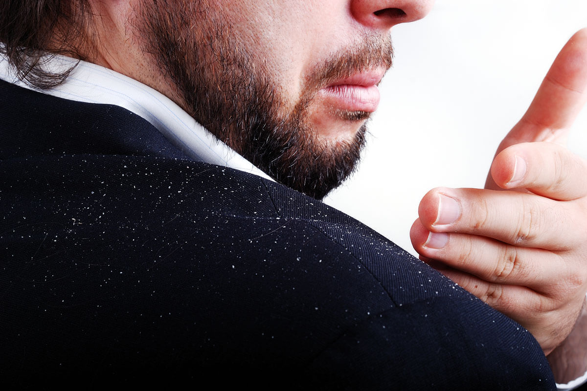 Schuppe ist nicht Schnuppe, © ESB Professional/Shutterstock.com