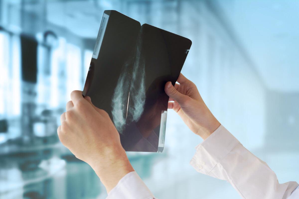 Wer erkennt Brustkrebs besser?, © Guschenkova/Shutterstock.com