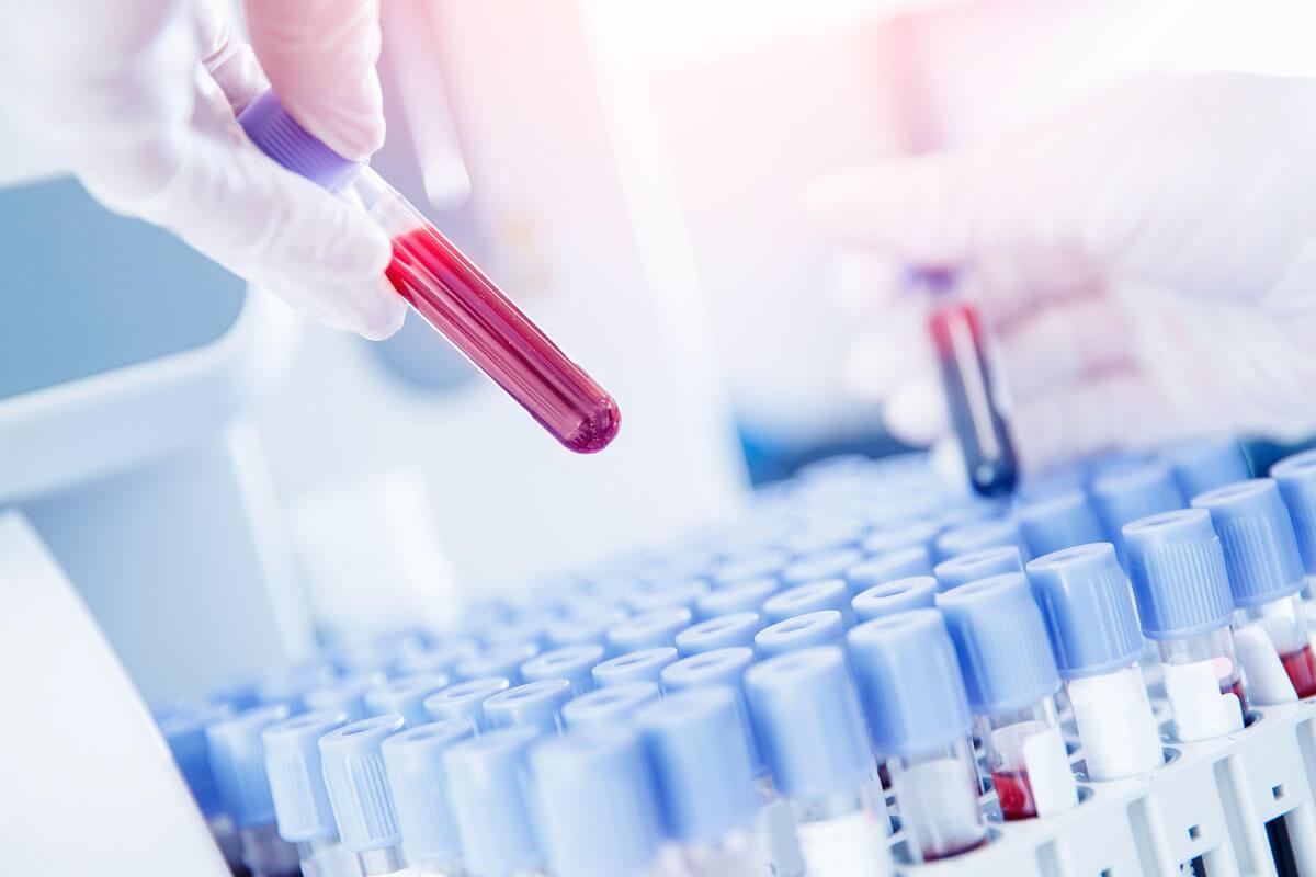 Wie gut sind Corona-Antikörpertests?, © Parilov/Shutterstock.com