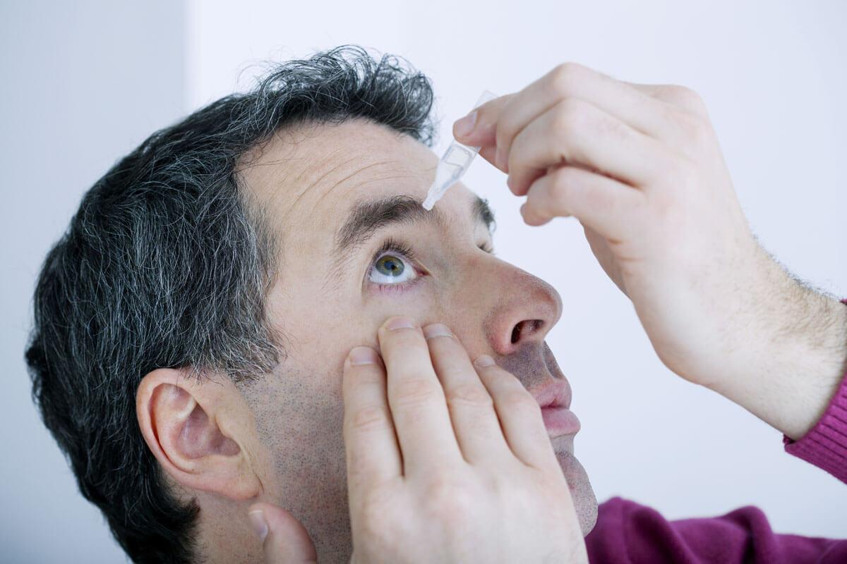 Keine Selbsthilfe bei roten Augen, © Image Point Fr/Shutterstock.com